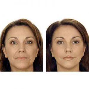 Botox Packages in Iran